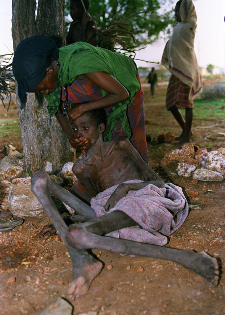 A dying Somali is force-fed by an unidentified local volunteer worker, outside the hospital in Baidoa on Saturday, September 29, 1992. Having eaten, the boy vomited his food, laid his head on the ground and died. The death rate in Baidoa is rising due to deteriorating security and an upsurge in clan warfare which are preventing enough food from being delivered by road. (Photo by Hassan Amini/AP Photo)