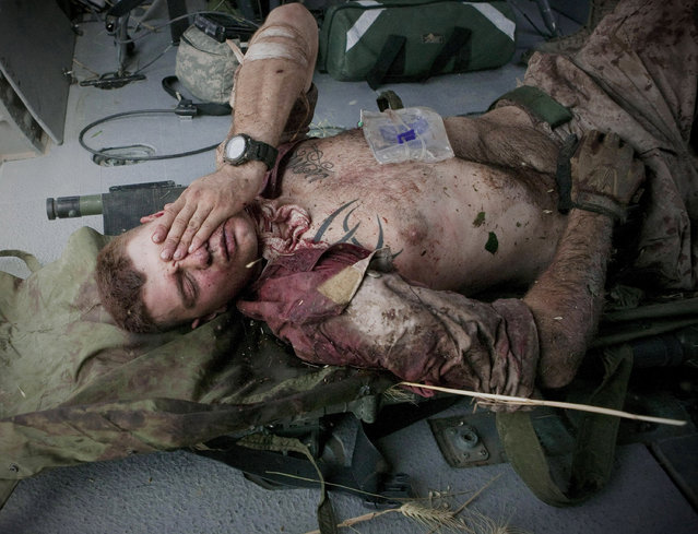 """Injured U.S. Marine Cpl. Burness Britt reacts after being lifted onto a medevac helicopter from the U.S. Army's Task Force Lift """"Dust Off"""", Charlie Company 1-214 Aviation Regiment on June 4, 2011. (Photo by Anja Niedringhaus/AP Photo/File)"""