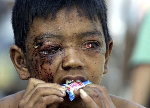 An Acehnese child who survived a tsunami eats a sweet at a military hospital in the Indonesian city of Banda Aceh in this January 20, 2005 file photo. (Photo by Reuters/Stringer)