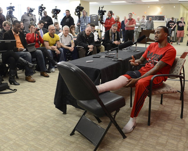 Louisville basketball player Kevin Ware answers questions during a press conference, Wednesday April 3, 2013, at the KFC Yum! Center practice facility in Louisville, Ky. Ware was released from an Indianapolis hospital Tuesday, two days after millions watched him break his right leg on a horrifying play trying to block a shot during an NCAA college basketball regional championship game against Duke. (Photo by Timothy D. Easley/AP Photo)
