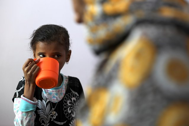 Ahmadiya Juaidi, 13, drinks a supplemental nutrition shake at malnutrition treatment ward of al-Sabeen hospital in Sanaa, Yemen on February 24, 2021. (Photo by Khaled Abdullah/Reuters)