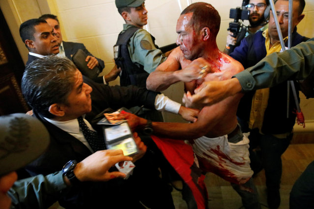 An injured government supporter tries to leave the building after he and a group of fellow government supporters burst into Venezuela's opposition-controlled National Assembly during a session, in Caracas, Venezuela on July 5. 2017. (Photo by Carlos Garcia Rawlins/Reuters)