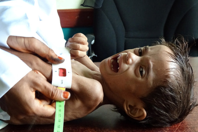 Ahmed Abdo Salem, a two-year-old Yemeni child displaced by conflict suffering from malnutrition (weighing only five kilograms) is measured at a health clinic in the war-ravaged western Hodeida province, on February 15, 2021. (Photo by Khaled Ziad/AFP Photo)