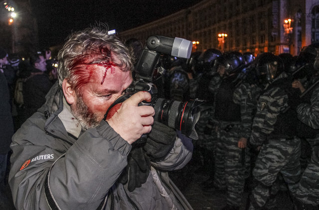 Wounded Reuters photographer Gleb Garanich, who was injured by riot police, takes pictures as riot police block protesters during a scuffle at a demonstration in support of EU integration at Independence Square in Kiev November 30, 2013. Riot police in the Ukrainian capital Kiev used batons and stun grenades to disperse hundreds of pro-Europe protesters from the city's main Independence Square early on Saturday, witnesses said. (Photo by Reuters/Stringer)