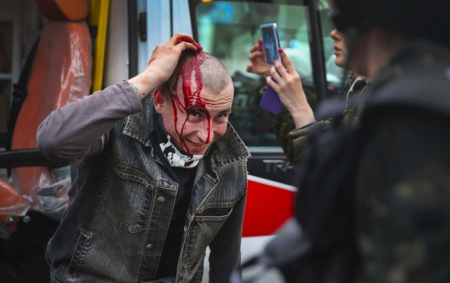 A pro-Russian activist gets medical attention after a clash with pro-government activists during a rally and march in Donetsk, Ukraine, on March 28, 2014. Several people were injured when the pro-Russian activists attacked a pro-government march. (Photo by Scott Olson/Getty Images)