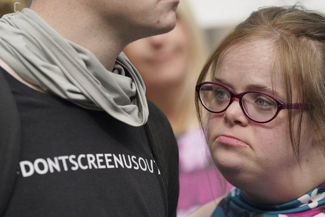 """Campaigner Heidi Crowter looks on after speaking to the media after her court case, outside the High Court in London, Thursday, September 23, 2021. A woman with Down's syndrome has lost a court challenge against the British government over a law allowing the abortion up until birth of a foetus with the condition. Heidi Crowter, 26, and two others argued that part of the Abortion Act is discriminatory. Abortions in England, Wales and Scotland are allowed up till 24 weeks of pregnancy, but terminations can be allowed up until birth if there is """"a substantial risk"""" that if the child were born it would suffer from serious abnormalities. (Photo by Gareth Fuller/PA Wire via AP Photo)"""