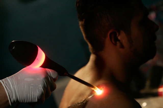 A former gang member has a tattoo characteristic of the Mara Salvatrucha street gang erased with an infrared ray, which burns the top layer of skin off, at a clinic in Chamelecon, in San Pedro Sula, Honduras, on January 28, 2008. Former gang members and other people with tattoos go through the painful process of having the tattoos removed to improve their chances of employment or to make them less easy to be identified as illegal migrants in the U.S. The gang members in the tattoo removal clinic say active gang members who have their tattoos removed are sometimes murdered by other gang members. (Photo by Edgard Garrido/Reuters)