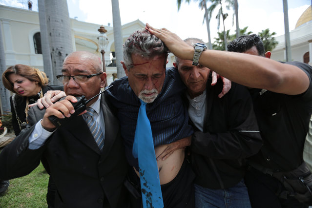 Opposition lawmaker Americo De Grazia is led away by bodyguards and a National Assembly employee after he was injured in a melee with supposed government supporters who tried to force their way into the National Assembly during a special session coinciding with Venezuela's independence day, in Caracas, Wednesday, July 5, 2017. At least five lawmakers were injured in the attack. De Grazia had to be taken in a stretcher to an ambulance suffering from convulsions, said a fellow lawmaker. (Photo by Fernando Llano/AP Photos)