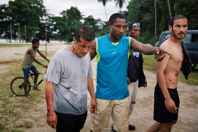 Injured refugees (L) and (R) from the Australian-funded Manus Island detention centre are pictured in Lorengau after an alleged attack by a group of Papua New Guinean men in this picture taken on August 10, 2016 by photographer Matthew Abbott. (Photo by Matthew Abbott/Reuters)