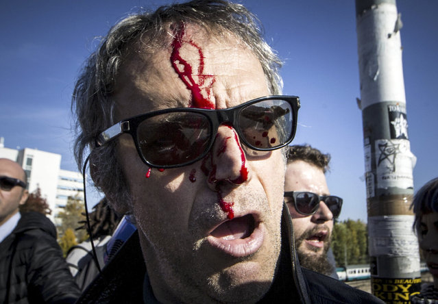 Blood runs down the face of a wounded protester after clashes between demonstrators and riot police, in Bologna, Italy, Sunday, November 8, 2015. Hundreds of demonstrators gathered in Bologna to protest the arrival of Northern League leader Matteo Salvini, whom they decried as a racist for his anti-migrant views, and his meeting with former premier Silvio Berlusconi. (Photo by Massimo Percossi/AP Photo via ANSA)