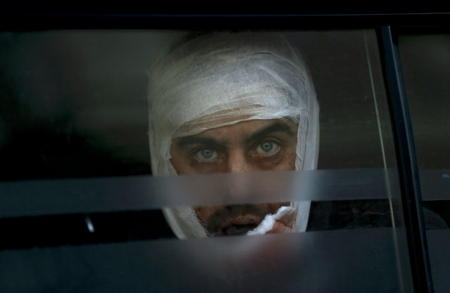 A wounded Ukrainian soldier looks through a windows as he arrives to a hospital in Artemivsk, February 18, 2015. Government forces started pulling out of a town in eastern Ukraine on Wednesday after a fierce assault by Russian-backed separatists which Europe said violated a crumbling ceasefire. (Photo by Gleb Garanich/Reuters)