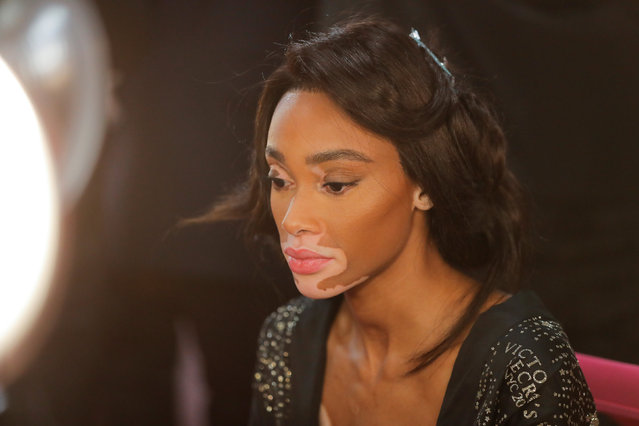 Winnie Harlow sits backstage during the Victoria's Secret fashion show in the Manhattan borough of New York City, U.S., November 8, 2018. (Photo by Caitlin Ochs/Reuters)