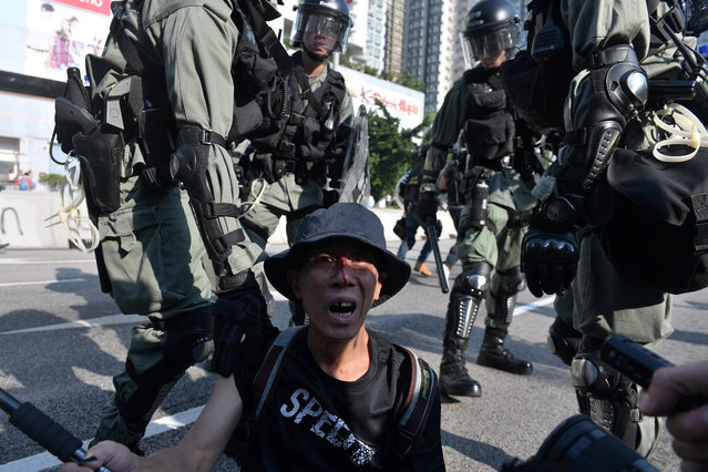A pro-democracy protester reacts while blood streams from his face, as police (background) look on in Hong Kong's Tuen Mun district on September 21, 2019. Riot police and protesters fought brief skirmishes in a town close to the Chinese border on September 21, the latest clashes during huge pro-democracy protests that have battered the financial hub for more that three months. (Photo by Nicolas Asfouri/AFP Photo)