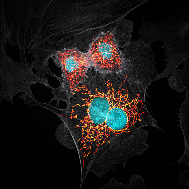 10th Place: Jason M. Kirk, Baylor College of Medicine, Optical Imaging & Vital Microscopy Core, Houston, Texas, USA. BPAE cells in telophase stage of mitosis. Confocal with Enhanced Resolution, 63x (Objective Lens Magnification). (Photo by Jason M. Kirk/Nikon's Small World 2019)