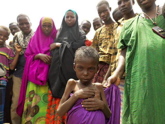 About 3.2 million people are on the brink of starvation in Somalia. Thirteen-year-old Abshivay Hussein Maalin is suffering from malnutrition. He is living in Muuri IDP camp in Baidoa. (Photo by Peter Caton/Mercy Corps)