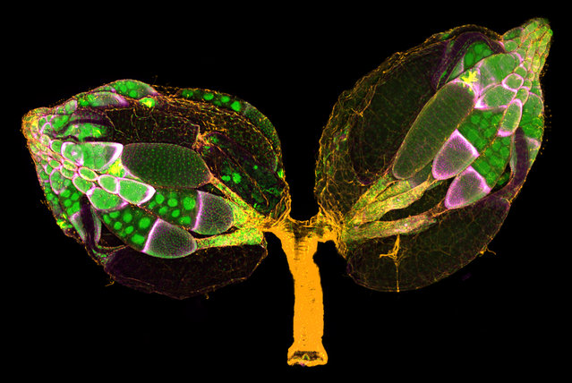 11th Place: Dr. Yujun Chen & Dr. Jocelyn McDonald, Kansas State University, Department of Biology, Manhattan, Kansas, USA. A pair of ovaries from an adult Drosophila female stained for F-actin (yellow) and nuclei (green); follicle cells are marked by GFP (magenta). Confocal, 10x (Objective Lens Magnification). (Photo by Yujun Chen/Nikon's Small World 2019)