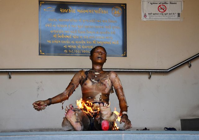 An Indian protester self immolates at the Rajkot Municipal Corporation premises in Rajkot, some 210 kms from Ahmedabad on April 3, 2013. Five people set themselves on fire in western India, leaving one dead as they protested official plans to raze their home in a drive to remove illegal structures, police said. The five people, including three women, belonged to the same family and turned up at a city government office in the western state of Gujarat around noon, with kerosene-filled containers in tow, local police said. (Photo by Stringer/AFP Photo)