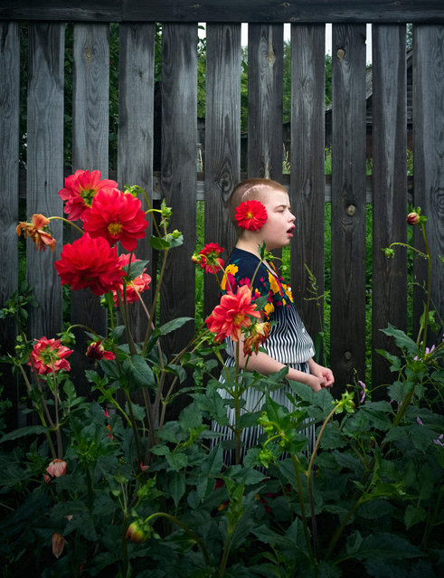 Portrait of a girl from the neuropsychiatric boarding facility for girls. (Photo by Anastasia Rudenko)