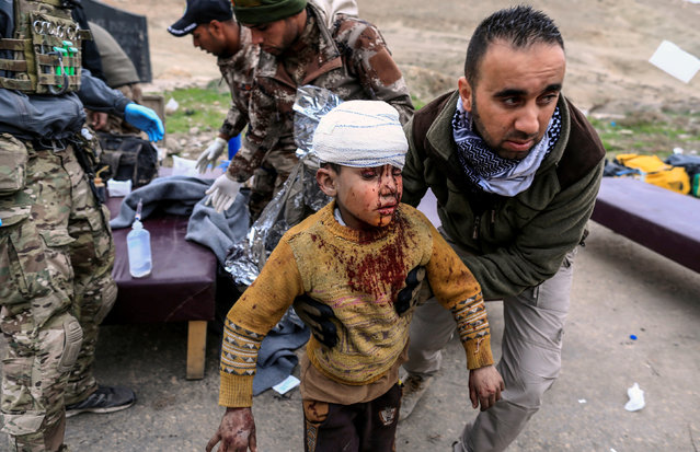 A boy injured in a mortar attack walks toward an ambulance after being treated by medics in a field clinic as Iraqi forces battle with Islamic State militants, in western Mosul, Iraq March 2, 2017. (Photo by Zohra Bensemra/Reuters)