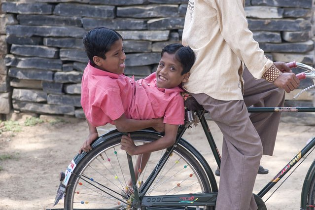 Conjoined Twins Who Are Worshipped In India