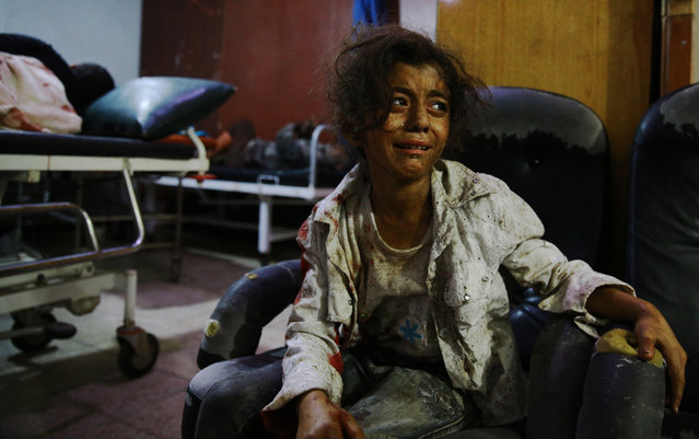A wounded Syrian girl cries at a make-shift hospital in the rebel-held area of Douma, east of the capital Damascus, following reported air strikes by regime forces, on August 12, 2015. At least 27 civilians were killed in Syrian government air strikes on the Eastern Ghouta region near Damascus according to a monitoring group. (Photo by Abd Doumany/AFP Photo)