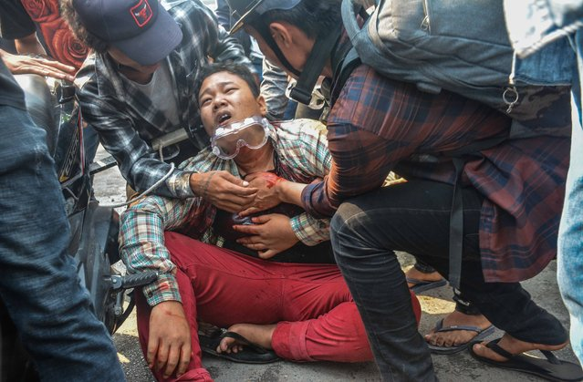 A wounded protester is seen after security forces intervene in protesters during a protest against military coup and detention of elected government members in Mandalay, Myanmar on March 27, 2021. (Photo by Stringer/Anadolu Agency via Getty Images)