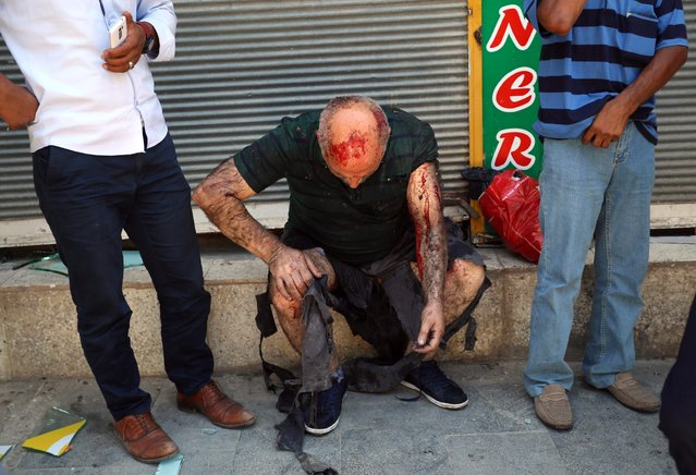 A wounded man waits for medical attention shortly after an explosion in the southeastern Turkish city of Suruc near the Syrian border, Turkey, Monday, July 20, 2015, An explosion Monday killed at least 10 people and injured scores of others in the southeastern Turkish city of Suruc near the Syrian border, state-run Turkish news agencies reported. (Photo by Ozcan Soysal/AP Photo)