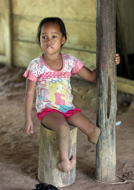 In this Monday, May 11, 2015 photo, Joani Londono, 5, who was born with a club foot and a missing leg, sits at her home in in Crucito, in Colombia's northwestern state of Cordoba. Joani's mother, Adevis Edith Diaz, claims the girl was born premature and she began to have pregnancy problems after she ate vegetables from a plot fumigated with chemicals from a plane. (Photo by Fernando Vergara/AP Photo)