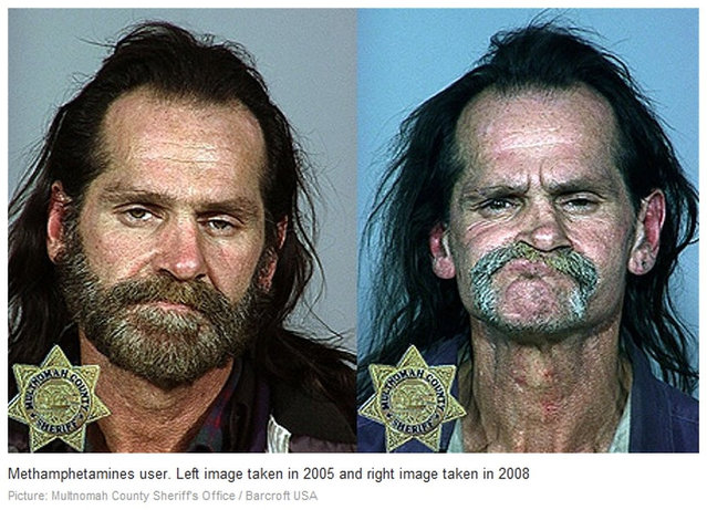Methamphetamine. Before and After