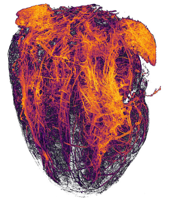 20th Place: Simon Merz, Lea Bornemann & Sebastian Korste, University Hospital Essen, Institute for Experimental Immunology & Imaging, Essen, Nordrhein-Westfalen, Germany. Blood vessels of a murine (mouse) heart following myocardial infarction (heart attack). Tissue Clearing, Light Sheet Fluorescence Microscopy, 2x (Objective Lens Magnification). (Photo by Simon Merz/Nikon's Small World 2019)