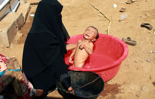 Hashem Mahmoud Atin, a ten-month-old displaced Yemeni child suffering from acute malnutrition and who is unable to reach a hospital for treatment, is bathed by his mother in a basin at a camp in Abs in northern Yemen's Hajjah province on September 3, 2020. Hundreds of children and pregnant women have been negatively affected by the closure of medical clinics funded by the United Nations Children's Fund (UNICEF) in Yemen's displaced camps. (Photo by Essa Ahmed/AFP Photo)