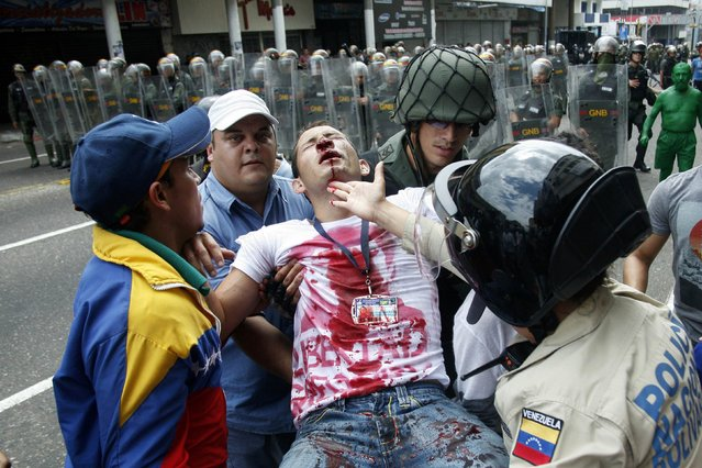 An opposition student is carried away after being injured during a protest against President Nicolas Maduro's government in San Cristobal February 12, 2015. (Photo by Reuters/Stringer)
