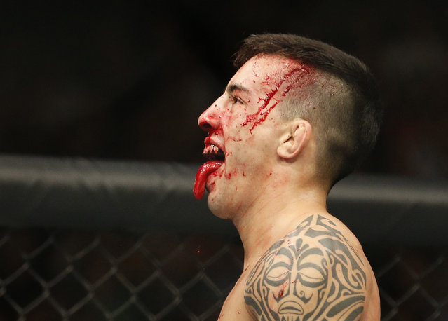 Thomas Almeida reacts between rounds in a bantamweight mixed martial arts bout against Brad Pickett at UFC 189 on Saturday, July 11, 2015, in Las Vegas. (Photo by John Locher/AP Photo)