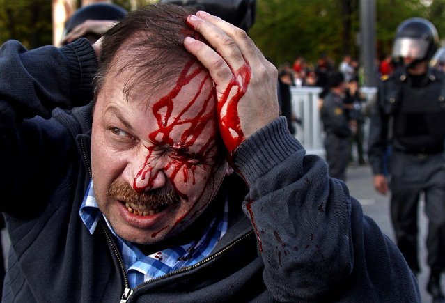 A wounded opposition protester winces in pain during a rally in Moscow on May 6, 2012