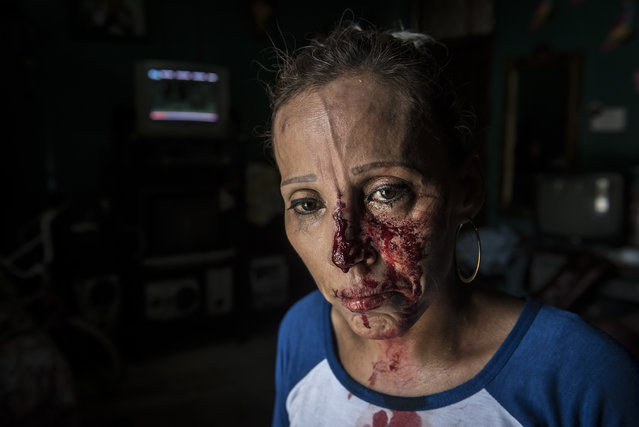 A woman with her face bloodied after she was pummeled by the police, stands in shock inside a house after a peaceful anti-government march was dissolved violently by government forces, in Managua, Nicaragua, Sunday, September 23, 2018. Police and militias opened fire on the demonstrators leaving at least one dead and several wounded, included at least one journalists. (Photo by Oscar Navarrete/AP Photo)