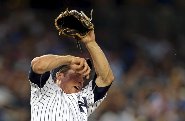 August 17, 2015; Bronx, NY, USA; New York Yankees starting pitcher Bryan Mitchell (55) reacts after being hit in the face by a baseball against the Minnesota Twins during the second inning at Yankee Stadium. (Photo by Adam Hunger/USA TODAY Sports)