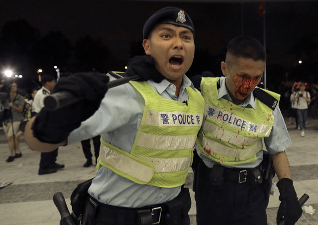 A Hong Kong police officer with blood flowing down his face is assisted by his colleague after clashing with protesters in a rally against the proposed amendments to the extradition law at the Legislative Council in Hong Kong during the early hours of Monday, June 10, 2019. The extradition law has aroused concerns that this legislation would undermine the city's independent judicial system as it allows Hong Kong to hand over fugitives to the jurisdictions that the city doesn't currently have an extradition agreement with, including mainland China, where a fair trial might not be guaranteed. (Photo by Vincent Yu/AP Photo)