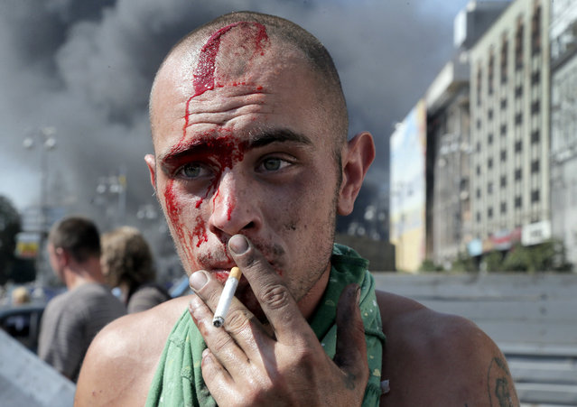An activist smokes a cigarette after clashes with a special forces police battalion in Independence Square, Kiev, Ukraine, Thursday, August 7, 2014. Demonstrators on Thursday confronted city workers attempting to clear a central square, lighting tyres on fire in protest against the city government's move. (Photo by Efrem Lukatsky/AP Photo)