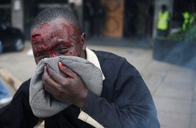 A protester beaten by Kenya policemen bleeds during clashes in Nairobi, Kenya May 16, 2016. (Photo by Goran Tomasevic/Reuters)