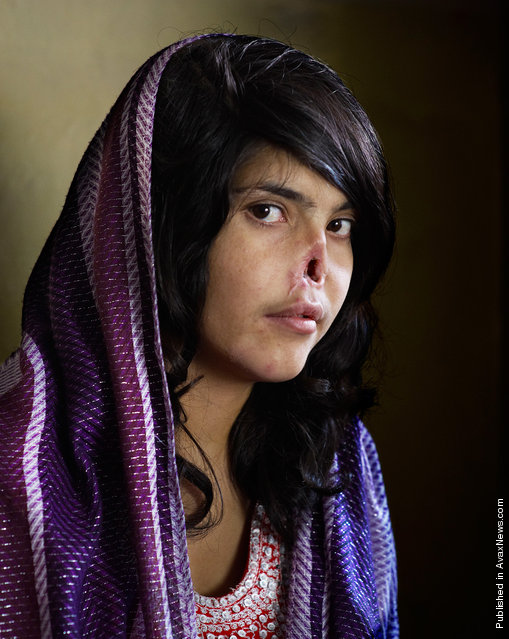 In this image, the winner of the World Press Photo Contest 2011 by Jodi Bieber, South Africa, Institute for Artist Management for Time magazine, is Bibi Aisha, an 18-year-old woman from Oruzgan province in Afghanistan, who fled back to her family home from her husband's house, complaining of violent treatment