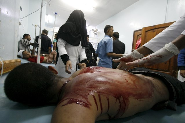 Medics attend to a fighter of the Popular Resistance Committees at a hospital after he was injured during clashes with Houthi fighters in Yemen's southwestern city of Taiz June 27, 2015. (Photo by Reuters/Stringer)