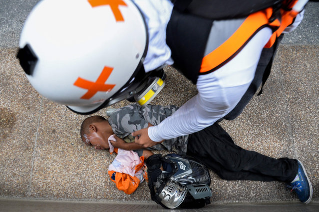 Medical staff assist a boy suffering from the effects of tear gas during clashes between opposition demonstrators and the riot police during a protest against President Nicolas Maduro' s government in Caracas, on May 30, 2017. Two leading Venezuelan opposition figures were wounded in anti- government protests Monday, as demonstrators vowed to intensify pressure on Maduro and against his plans to hold a constitutional assembly. (Photo by Federico Parra/AFP Photo)