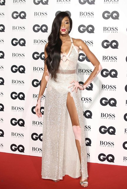 Model Winnie Harlow attends the GQ Men Of The Year Awards at Tate Modern on September 5, 2017 in London, England. (Photo by Mike Marsland/Mike Marsland/WireImage)