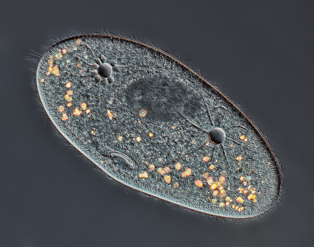 Taking 4th place, a 40x image of Paramecium sp. showing the nucleus, mouth and water expulsion vacuoles, by Rogelio Moreno Gill, from Panama City, Panama. (Photo by Rogelio Moreno Gill)