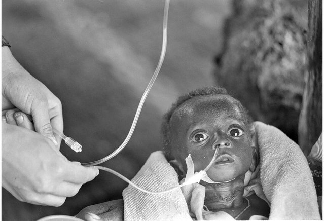 A Rwandan refugee receives IV fluids at a makeshift dispensary in Mugunga, a transit station for refugees coming in from the mountains; 1996. (Photo by Carol Guzy/The Washington Post)