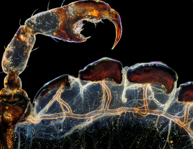 Third place: the rear leg, claw and respiratory trachea of a louse (Haematopinus suis). (Photo by Frank Reiser/Nassau Community College/Nikon Small World Photomicrography 2021)