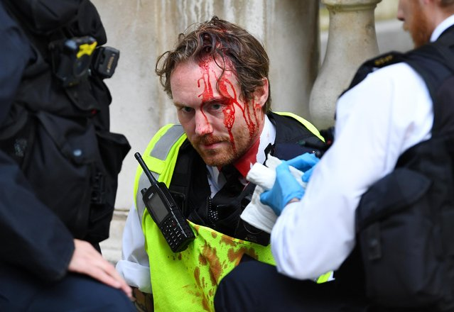 A Police officer receives medical attention after Police clashed with demonstrators in Whitehall during a Black Lives Matter protest in London, following the death of George Floyd who died in police custody in Minneapolis, London, Britain, June 7, 2020. (Photo by Dylan Martinez/Reuters)