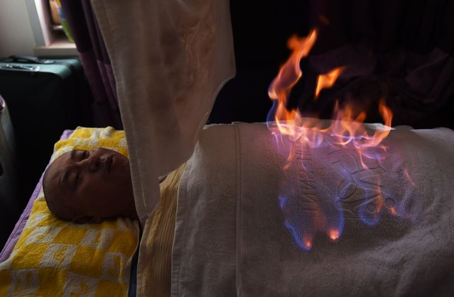 """This photo taken on June 27, 2014 shows Qi Lijun as he undergoes """"fire therapy"""" at an apartment in Beijing. A therapist pours alcohol over a patient and sets him alight – for some in China, playing with fire is a treatment for illness. (Photo by Greg Baker/AFP Photo)"""